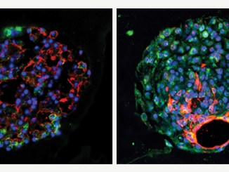 """Mouse (left) and human (right) alveolar progenitor cells grow into large lung organoids in culture, and make multiple types of epithelial cells including gas exchange type 1 cells (red) and surfactant-producing type 2 cells (green). Credit: led by Edward E. Morrisey, PhD, Perleman School of Medicine, University of Pennsylvania."""