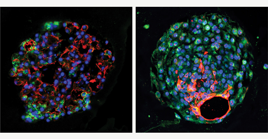 """""""Mouse (left) and human (right) alveolar progenitor cells grow into large lung organoids in culture, and make multiple types of epithelial cells including gas exchange type 1 cells (red) and surfactant-producing type 2 cells (green). Credit: led by Edward E. Morrisey, PhD, Perleman School of Medicine, University of Pennsylvania."""""""