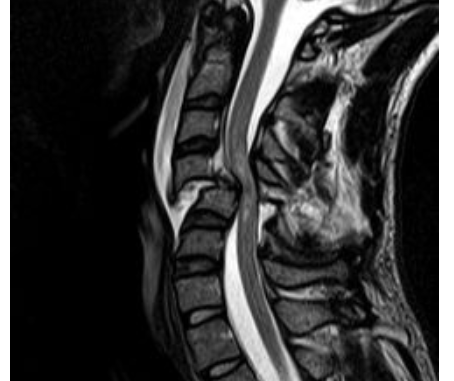 MRI of cervical spinal cord injury. Open source image by Андрей Королев.