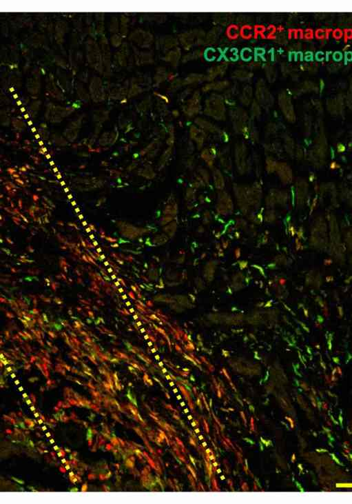 stem cells heart disease trigger immune response