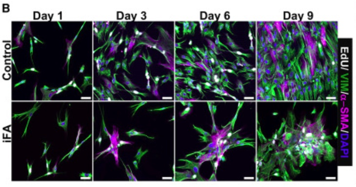 Fibrosis-model-IPS-cells-Fig-1b-Vijayaraj-et-al-Cell-Reports-2019