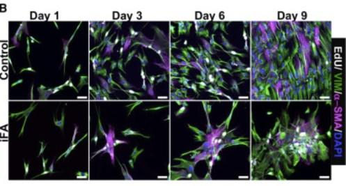 Fibrosis model IPS cells Fig 1b Vijayaraj et al Cell Reports 2019