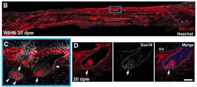 Fibroblasts-regeneration