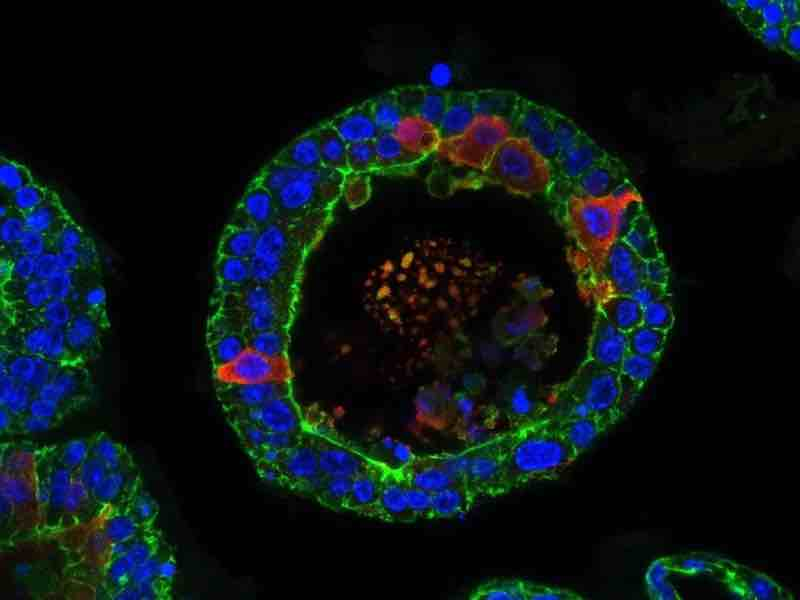 organoids tear glands sm