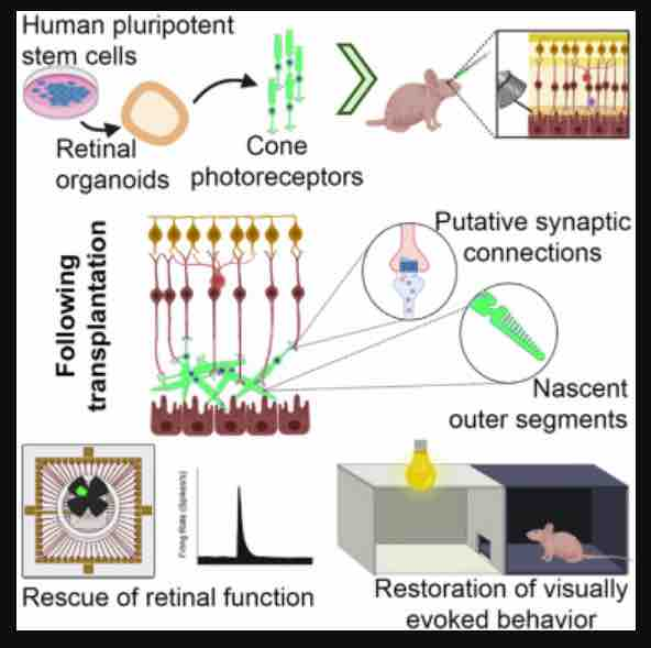 stem cells for vision loss ribeiro et al