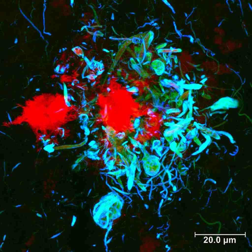 Alzheimers disease, Alzheimers disease stem cell