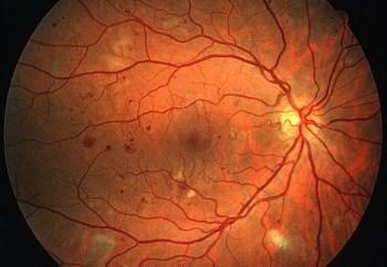 retina2