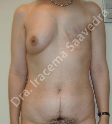 recostruccion mamas antes