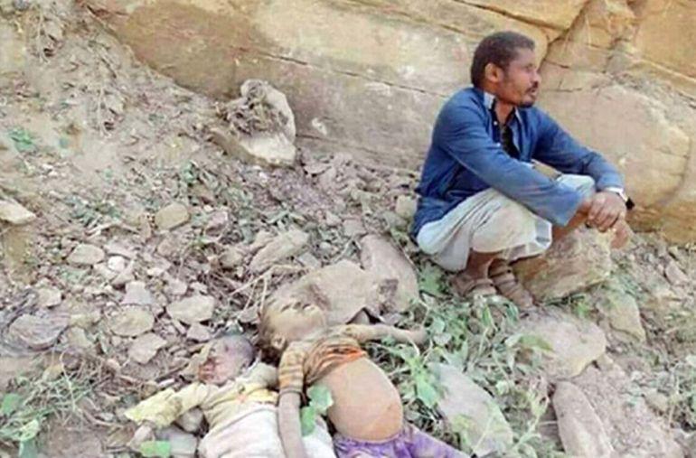 Yemen-Children-Face-Death-Malnutrition-forced-to-eat-wax-leaves