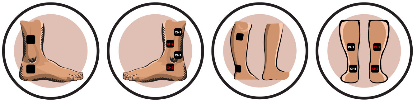 Ankle Electrode Pad Placement