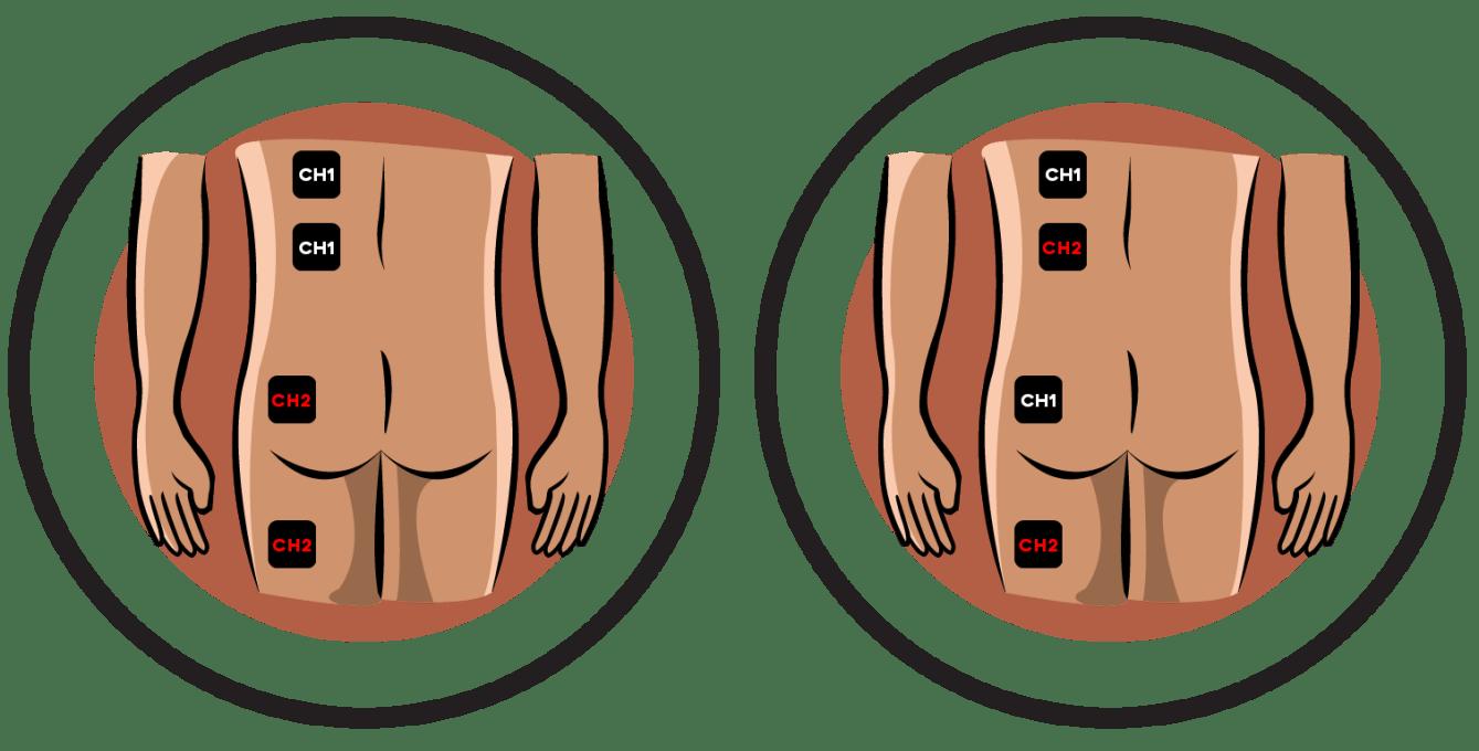 Hip Neuralgia Electrode Pad Placement