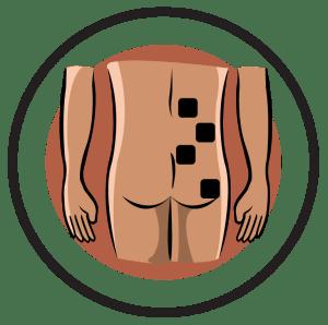 Phantom Limb Electrode Pad Placement