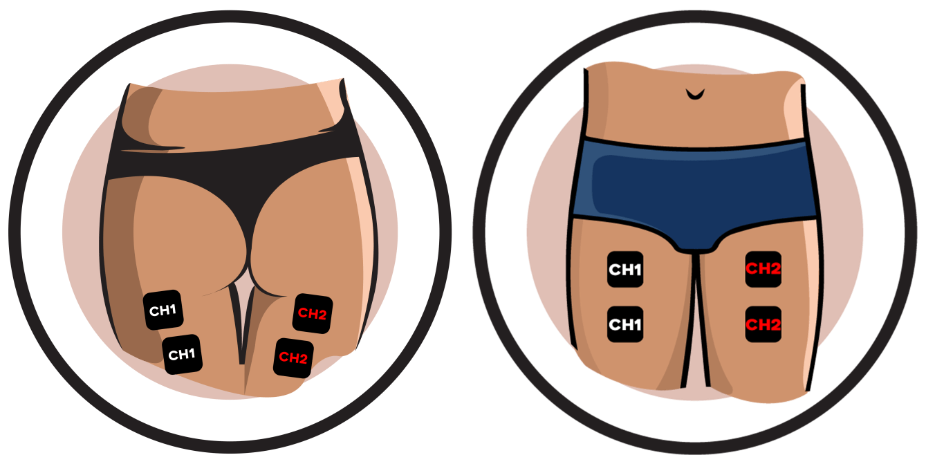 Thigh Electrode Pad Placement