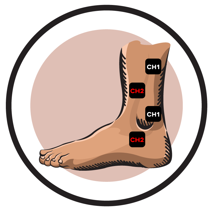 Ankle CH 1 CH2 Electrode Pad Placement