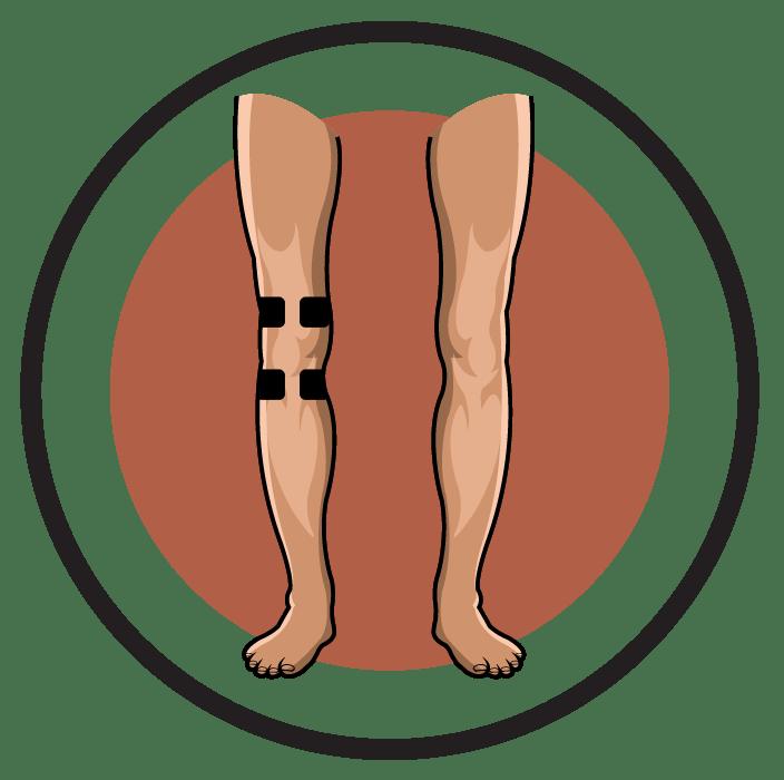 Knee Pain Degenerative Arthritis Electrode Pad Placement