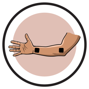 Carpal Tunnel Syndrome Electrode Pad Placement
