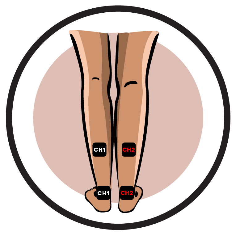 Diabetic Neuropathy-Lower Leg Pain Electrode Pad Placement