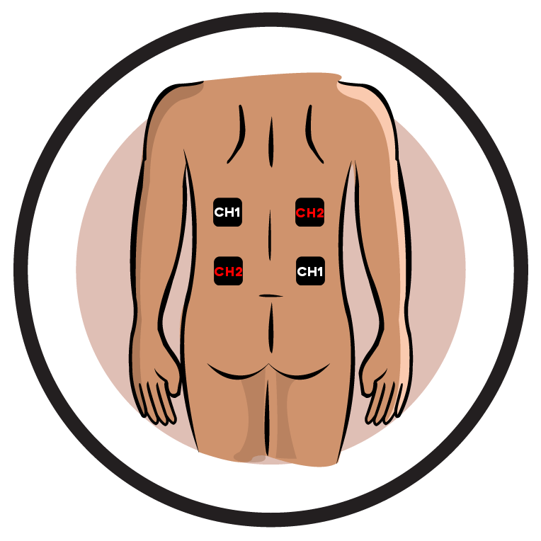 Herpes Zoster Neuralgia Electrode Pad Placement