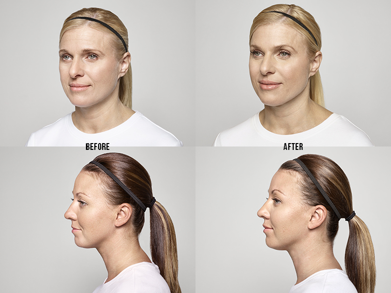 Restylane-before-after