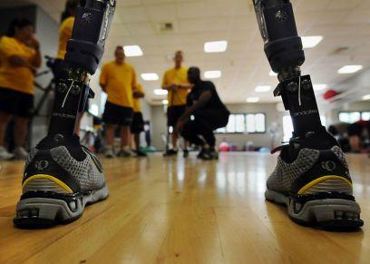 M4L6_Overview_prosthetic legs