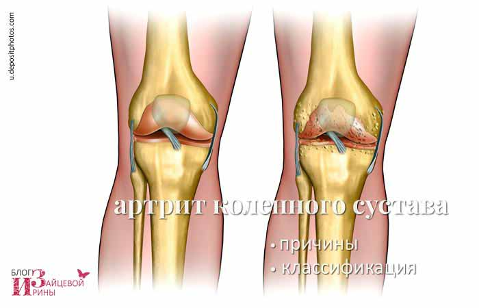 Народные лечение артрита коленного сустава фото