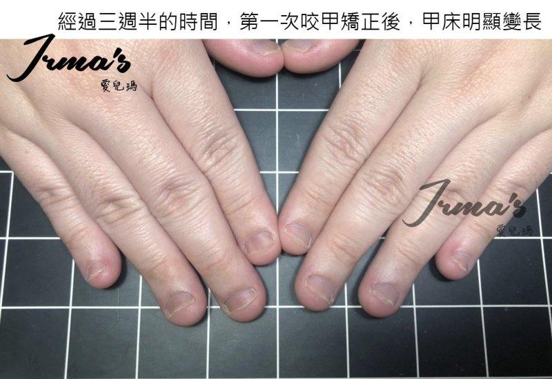 咬指甲矯正,咬指甲,指甲矯正,咬指甲變形,咬指甲光療,推薦高雄咬指甲光療,推薦高雄咬指甲矯正,咬甲,高雄指甲保養