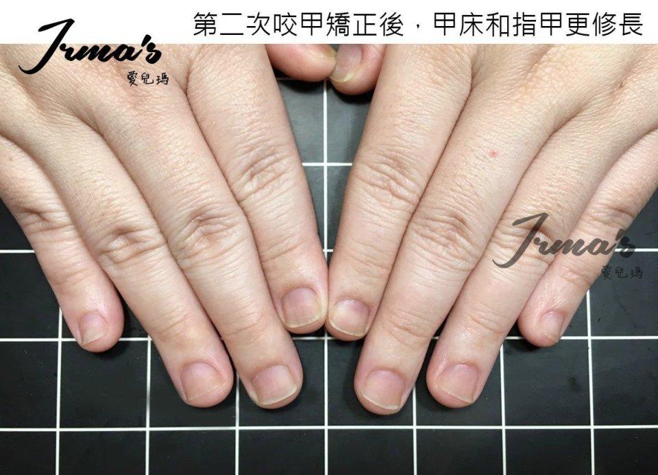 咬指甲矯正高雄,咬指甲光療,咬指甲變形,咬指甲矯正,咬指甲治療
