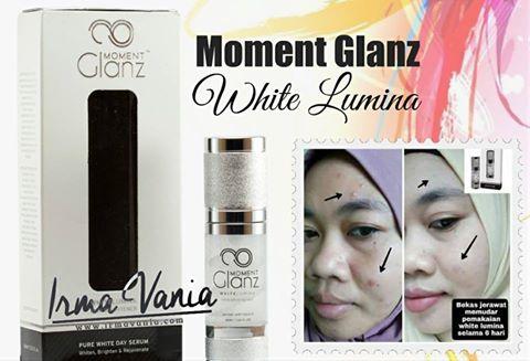 Cara Menghilangkan Bekas Jerawat Moment Glanz White Lumina