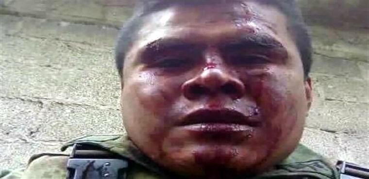 militar golpeado portada
