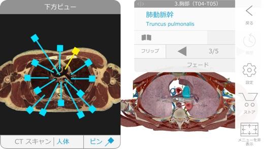 ヒューマン・アナトミー・アトラス2018エディション Screenshot