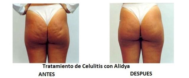 Antes y después de realizar un tratamiento con Alidya®