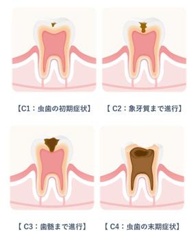 国立市の歯医者いさむ歯科クリニック 虫歯治療 イメージ写真