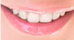 国立市の歯医者いさむ歯科クリニック ホワイトニング イメージ写真
