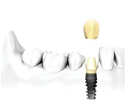 国立市の歯医者いさむ歯科クリニック インプラント治療 イメージ写真