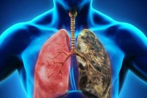Mesleki Solunum Sistemi Hastalıkları