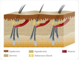 Hair Follicle – Follicular Unit Extraction