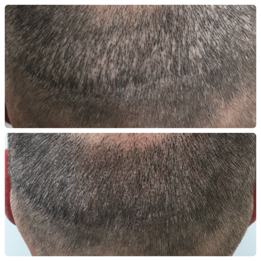 scalp-micropigmentation-fue-scars