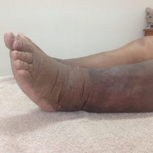 Conditions Treated with Compression Therapy 7