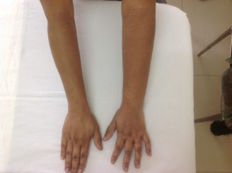 Conditions Treated With Compression Therapy Island Medical Mauritius Ltd