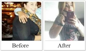 Gastric Sleeve Success Story