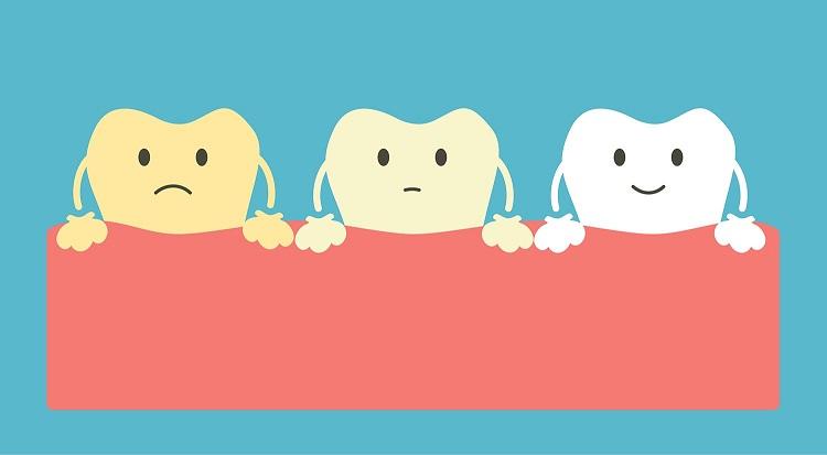 hammaste valgendus