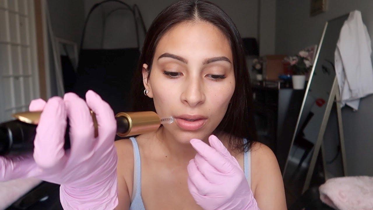 Por favor, no te inyectes fillers faciales en casa como estos YouTubers