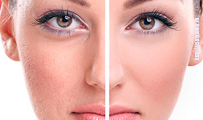 maski-pory | Четыре уникальные маски, которые за 3 дня сузят и очистят поры на вашем лице!
