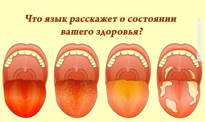 yazik   Что язык расскажет о состоянии  вашего здоровья?