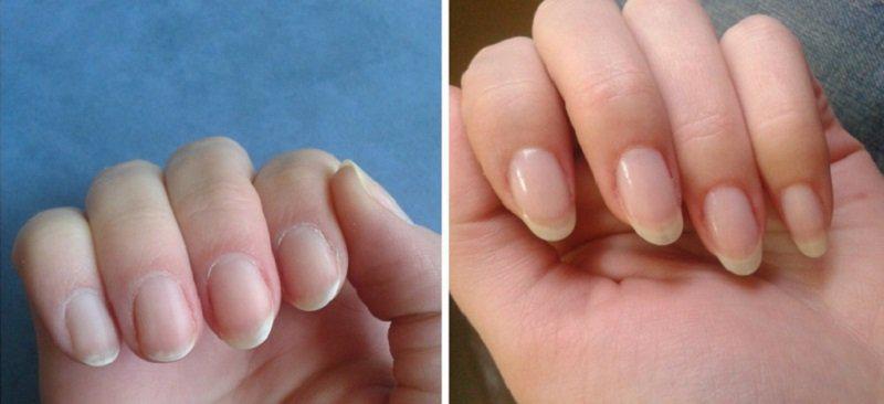 image1-39 | Как сделать ногти здоровыми и крепкими? Проверенное средство!