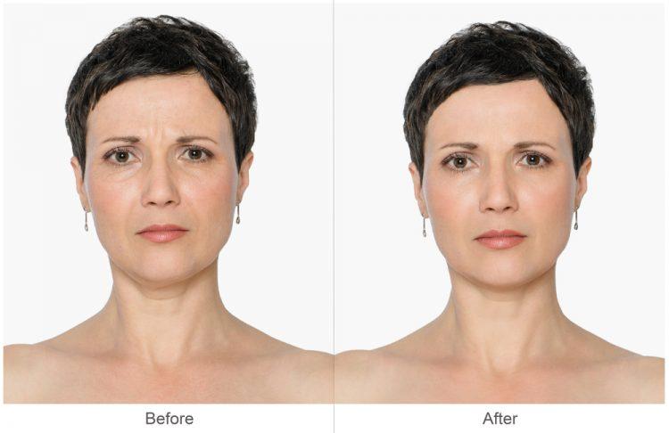 image1-81   Колоть или не колоть ботокс, а также вся правда о косметических процедурах