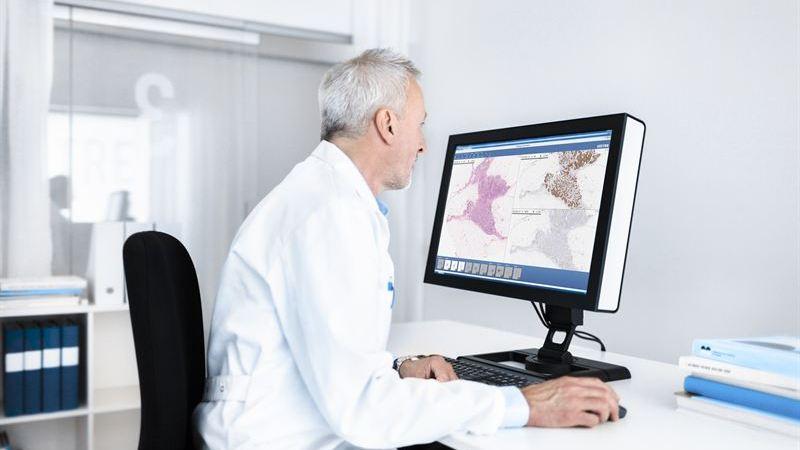 Effektivare och snabbare cancerdiagnoser – Sectra och Software Point integrerar sina IT-system för digital patologi och LIMS