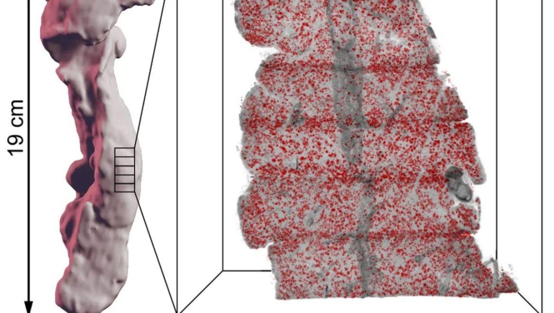 Ny metod möjliggör detaljstudier av mänskliga organ i 3D