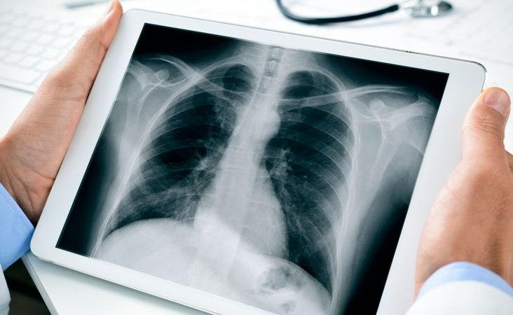 Nytt AI-stöd kan ge snabbare röntgenssvar