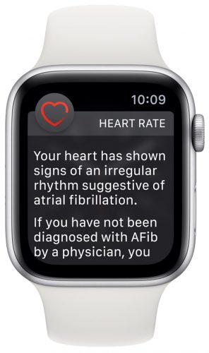 Apple-Watch-Series-4-irregular-Heart-Rate-Notification-296×500